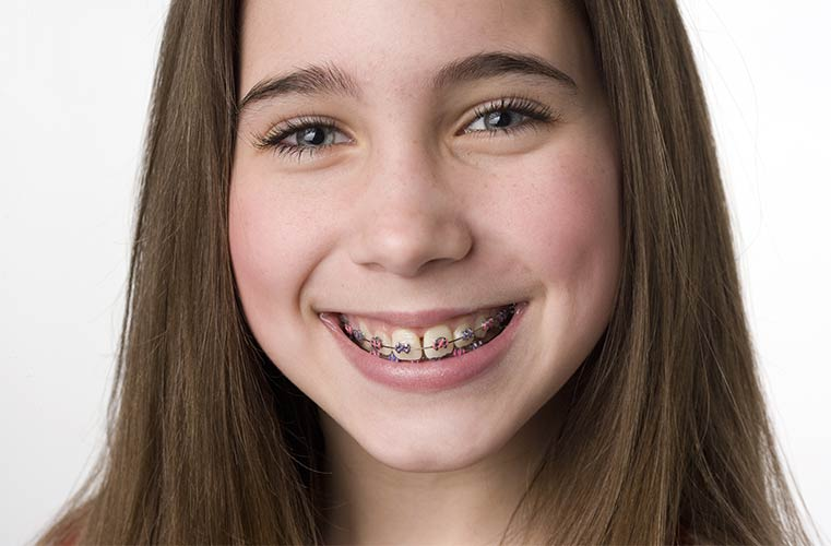 girl smiling after her first orthodontic visit