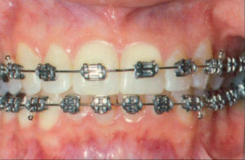 excellent brushing and flossing while in braces