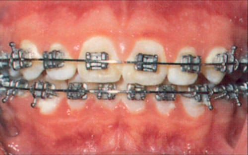 poor brushing and flossing while in braces