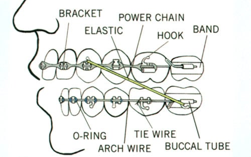 diagram of braces to help with your orthodontic emergency