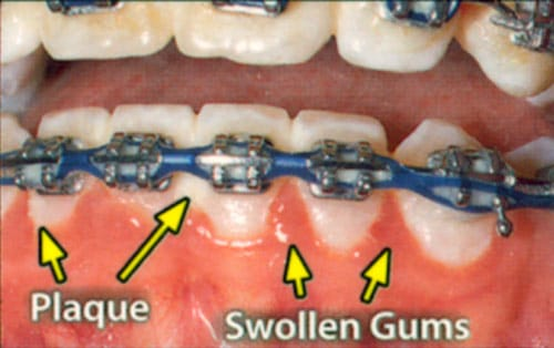 unhealthy gums caused by plaque buildup